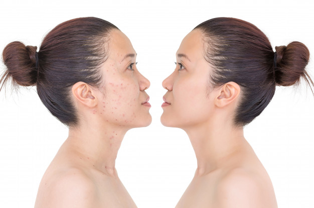 acne skin on left and clear skin on right